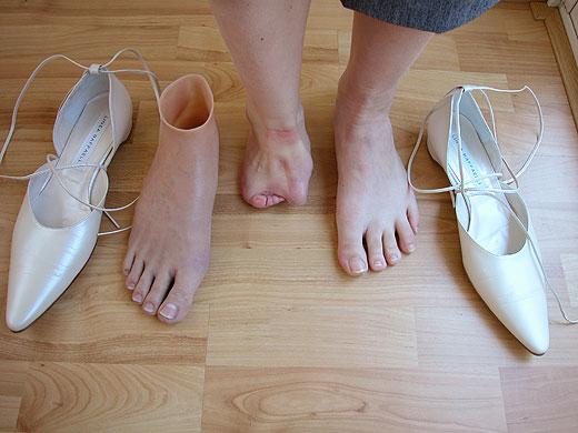 01 voetprothese1