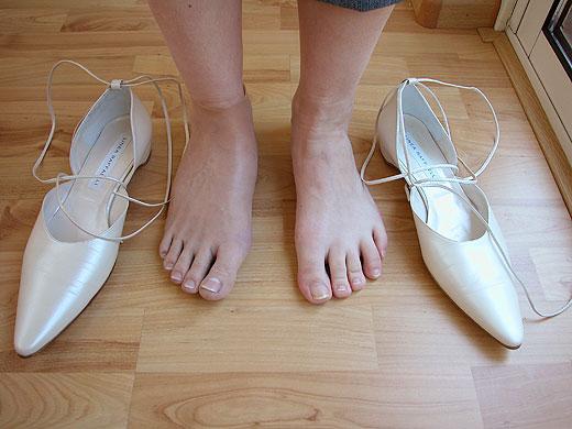 02 voetprothese2