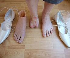 01-voetprothese1